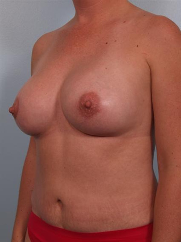 Complex Breast Revision Gallery - Patient 1310455 - Image 4