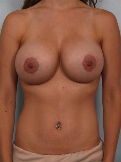 Breast Augmentation Gallery - Patient 1310456 - Image 2