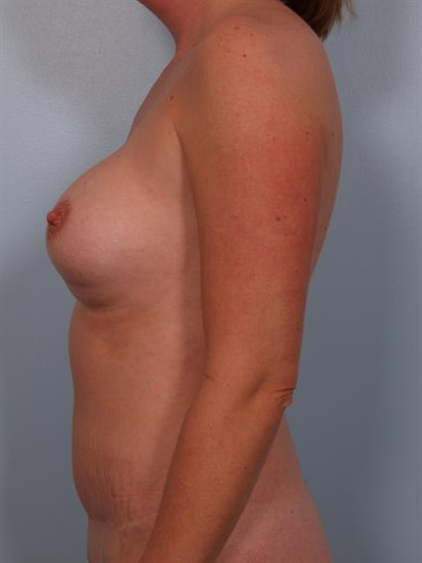 Complex Breast Revision Gallery - Patient 1310455 - Image 5