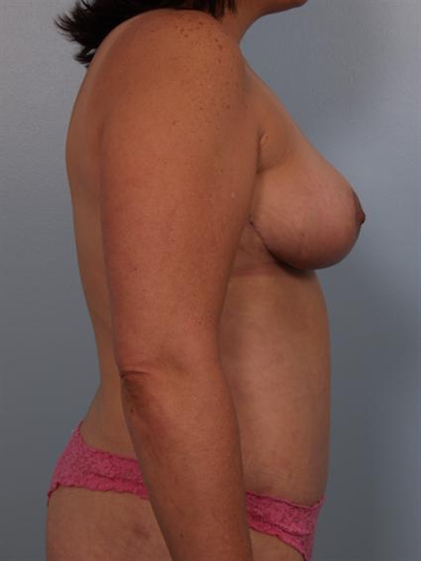 Breast Reduction Gallery - Patient 1310454 - Image 6
