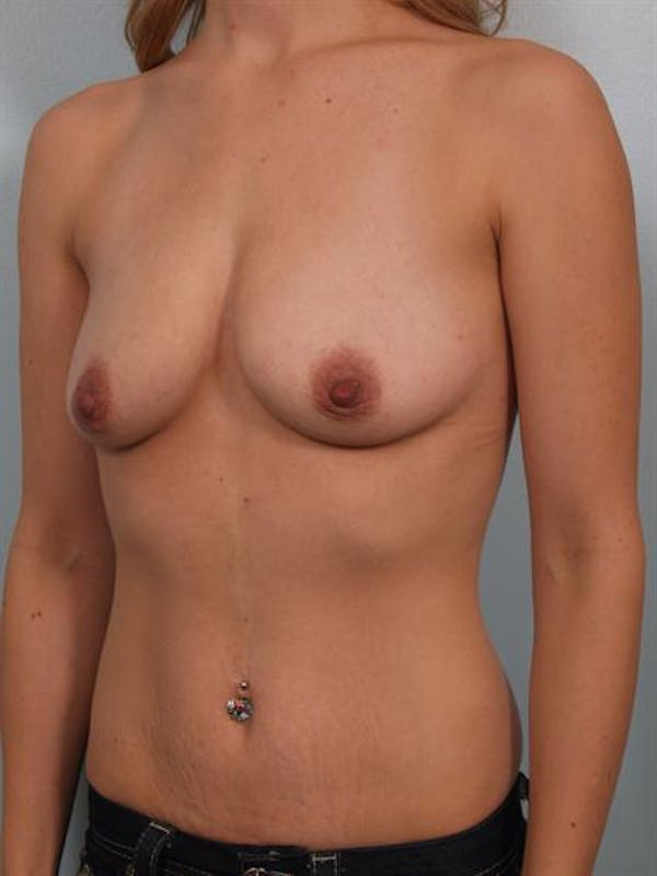 Breast Augmentation Gallery - Patient 1310456 - Image 3