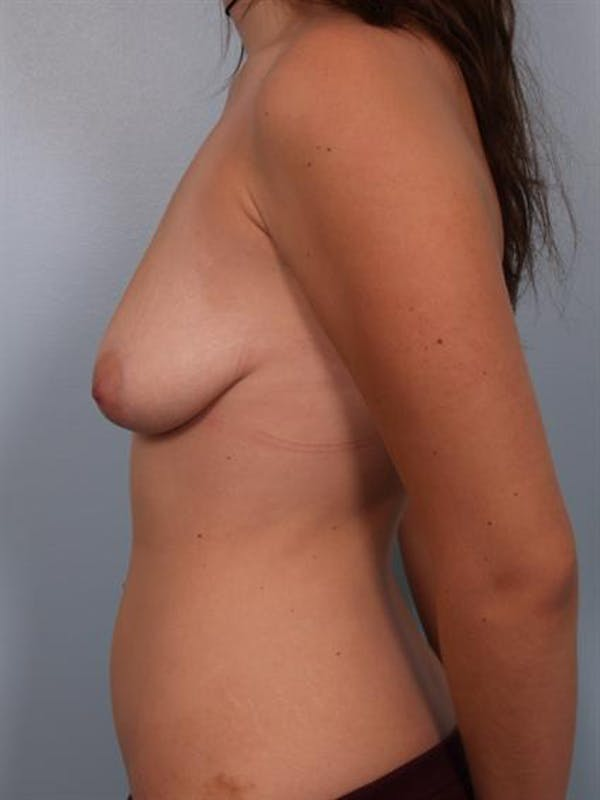 Breast Lift Gallery - Patient 1310457 - Image 3