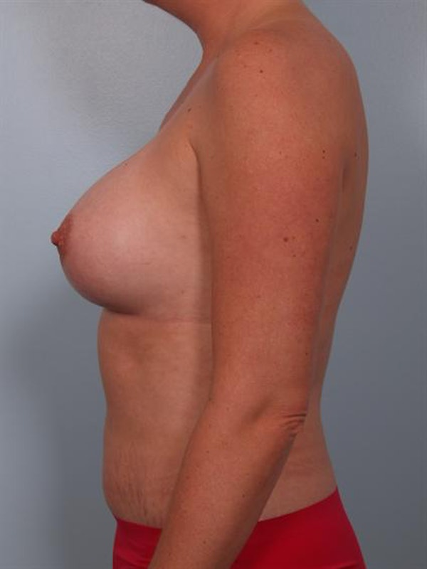 Complex Breast Revision Gallery - Patient 1310455 - Image 6