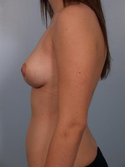 Breast Lift Gallery - Patient 1310457 - Image 4