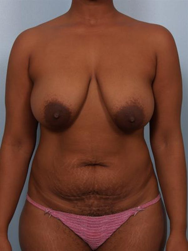 Breast Reduction Gallery - Patient 1310458 - Image 1