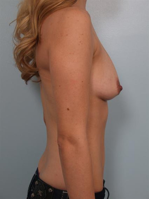 Breast Augmentation Gallery - Patient 1310456 - Image 5