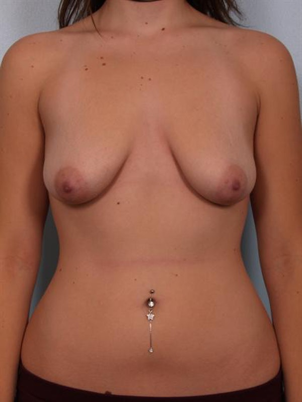Breast Lift Gallery - Patient 1310457 - Image 1