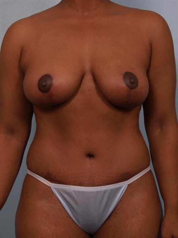 Breast Reduction Gallery - Patient 1310458 - Image 2