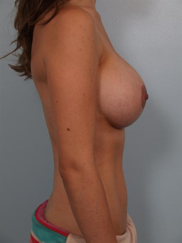 Breast Augmentation Gallery - Patient 1310456 - Image 6