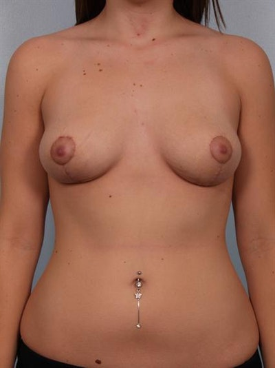 Breast Lift Gallery - Patient 1310457 - Image 2