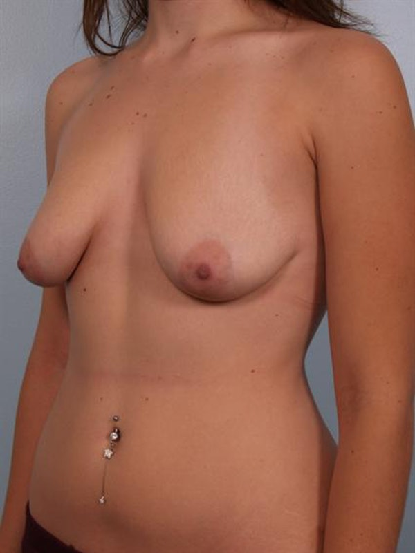 Breast Lift Gallery - Patient 1310457 - Image 5