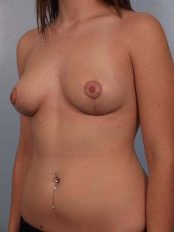 Breast Lift Gallery - Patient 1310457 - Image 6