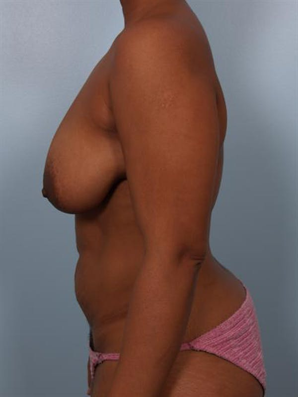 Breast Reduction Gallery - Patient 1310458 - Image 5