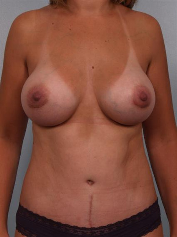 Breast Augmentation Gallery - Patient 1310460 - Image 2