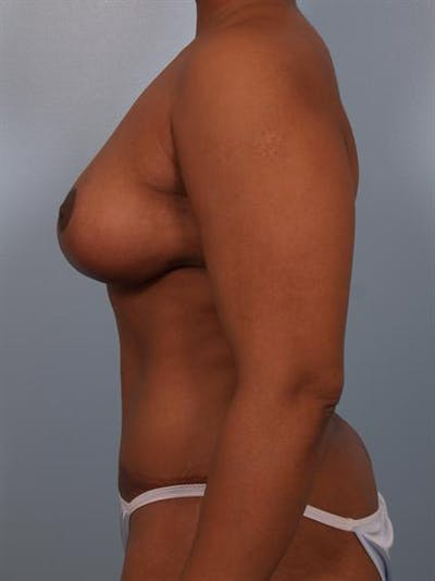 Breast Reduction Gallery - Patient 1310458 - Image 6