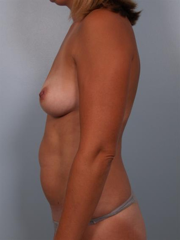 Breast Augmentation Gallery - Patient 1310460 - Image 3