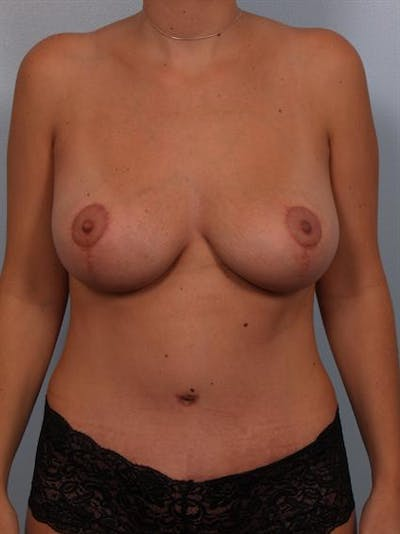 Breast Lift Gallery - Patient 1310461 - Image 2