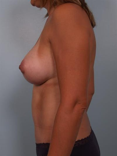 Breast Augmentation Gallery - Patient 1310460 - Image 4