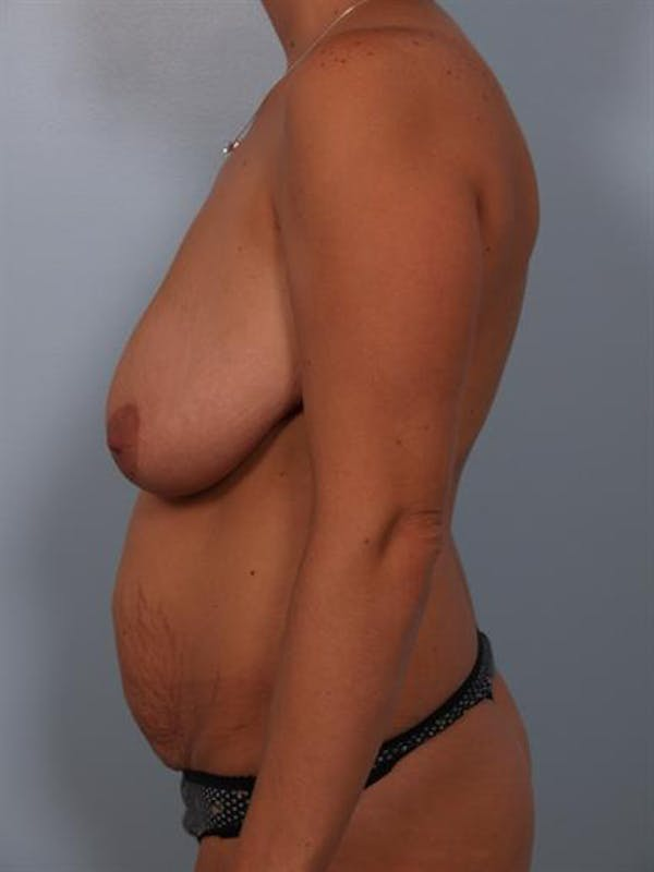 Breast Lift Gallery - Patient 1310461 - Image 3