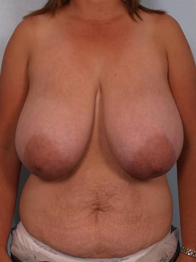 Breast Reduction Gallery - Patient 1310462 - Image 1