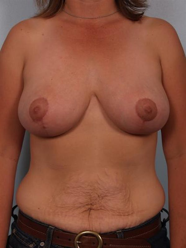 Breast Reduction Gallery - Patient 1310462 - Image 2