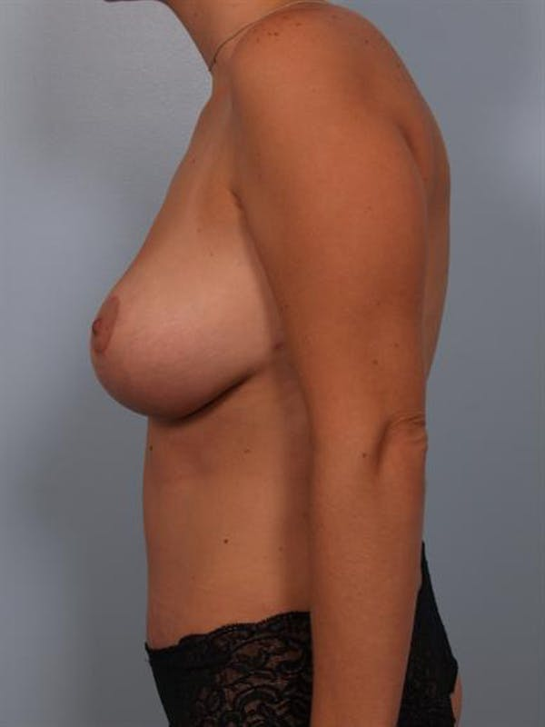 Breast Lift Gallery - Patient 1310461 - Image 4