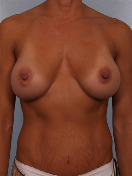 Image1 - Before and after image of Breast Revision by Dr. Cohen.