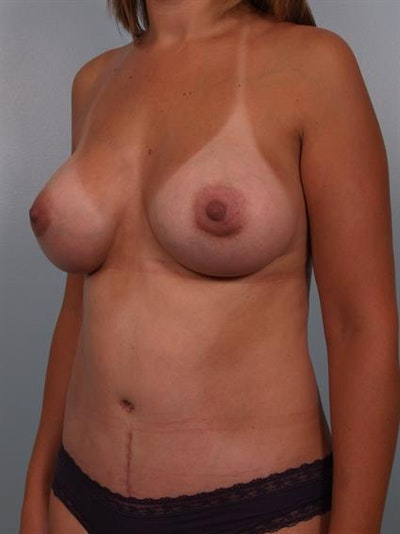 Breast Augmentation Gallery - Patient 1310460 - Image 6