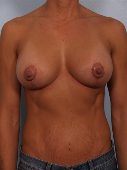 Image1 - Before and after image of Breast Rivison by Dr. Cohen.