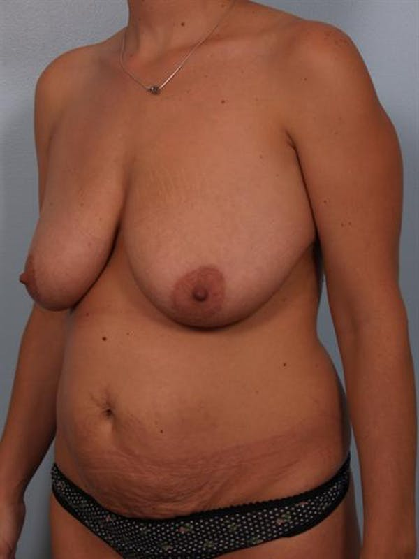 Breast Lift Gallery - Patient 1310461 - Image 5