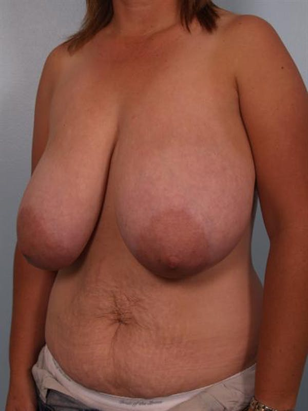Breast Reduction Gallery - Patient 1310462 - Image 3