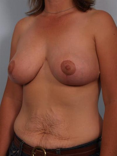 Breast Reduction Gallery - Patient 1310462 - Image 4