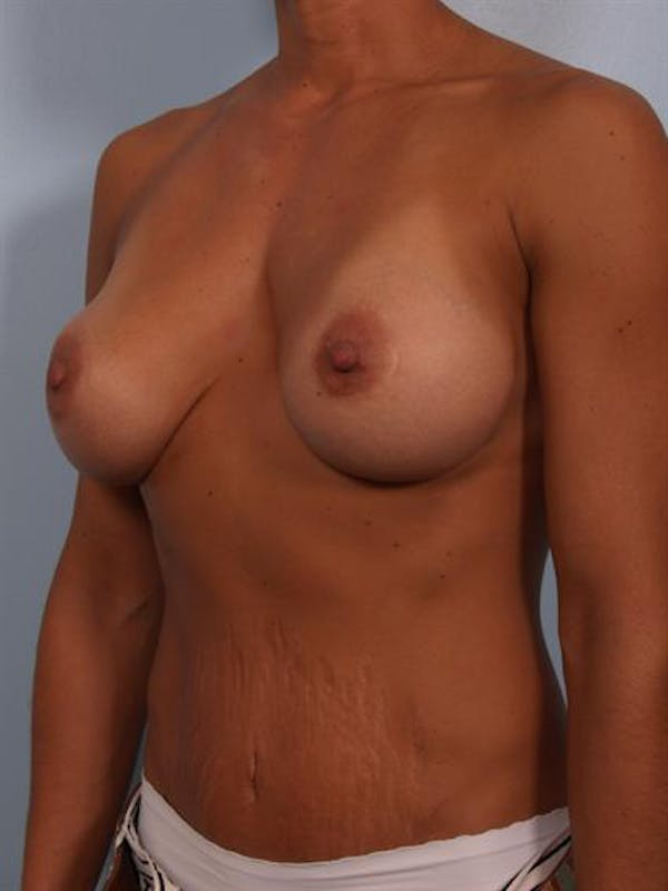 Complex Breast Revision Gallery - Patient 1310463 - Image 3