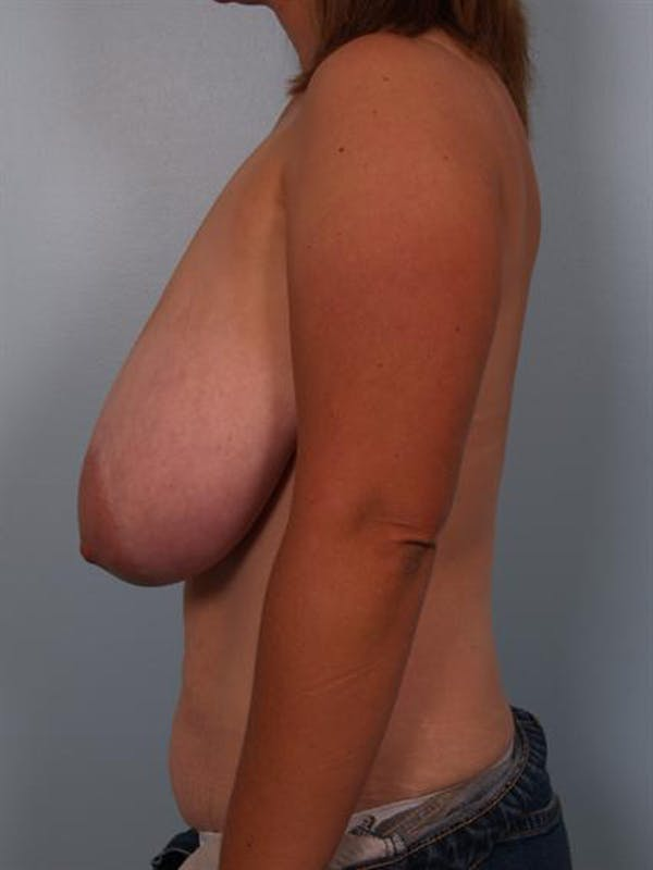 Breast Reduction Gallery - Patient 1310462 - Image 5