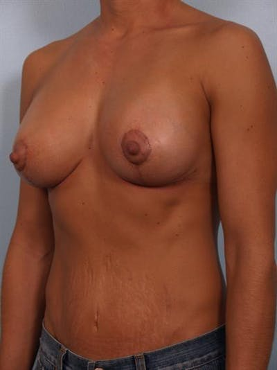 Complex Breast Revision Gallery - Patient 1310463 - Image 4