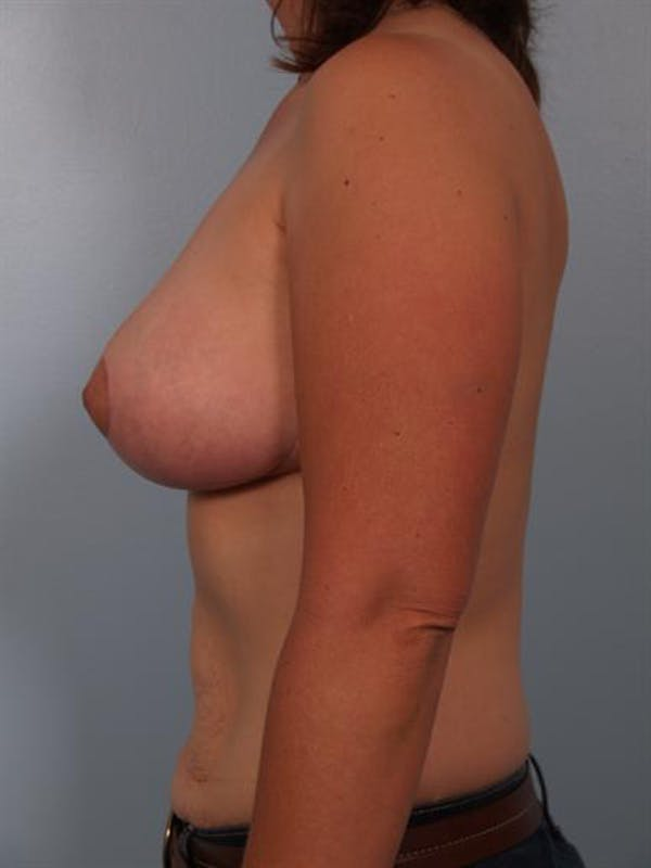 Breast Reduction Gallery - Patient 1310462 - Image 6