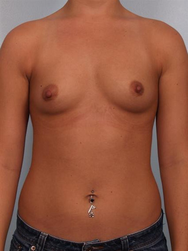 Breast Augmentation Gallery - Patient 1310465 - Image 1