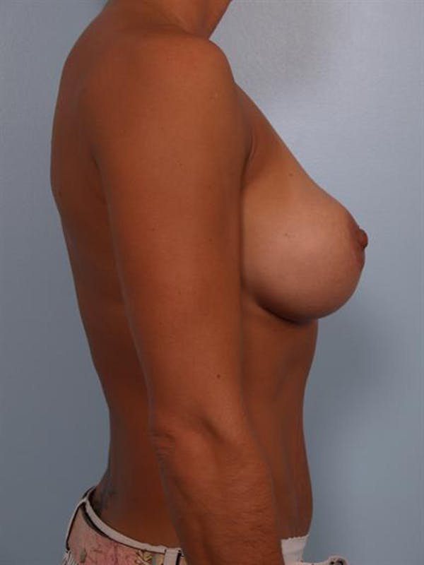 Complex Breast Revision Gallery - Patient 1310463 - Image 5