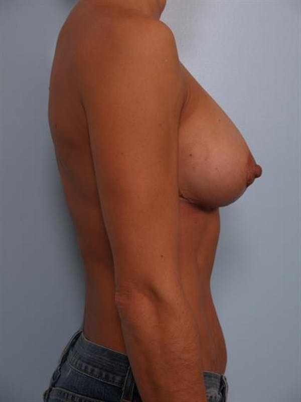 Complex Breast Revision Gallery - Patient 1310463 - Image 6