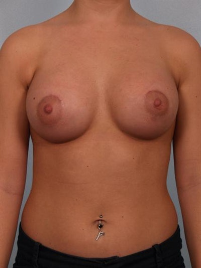 Breast Augmentation Gallery - Patient 1310465 - Image 2