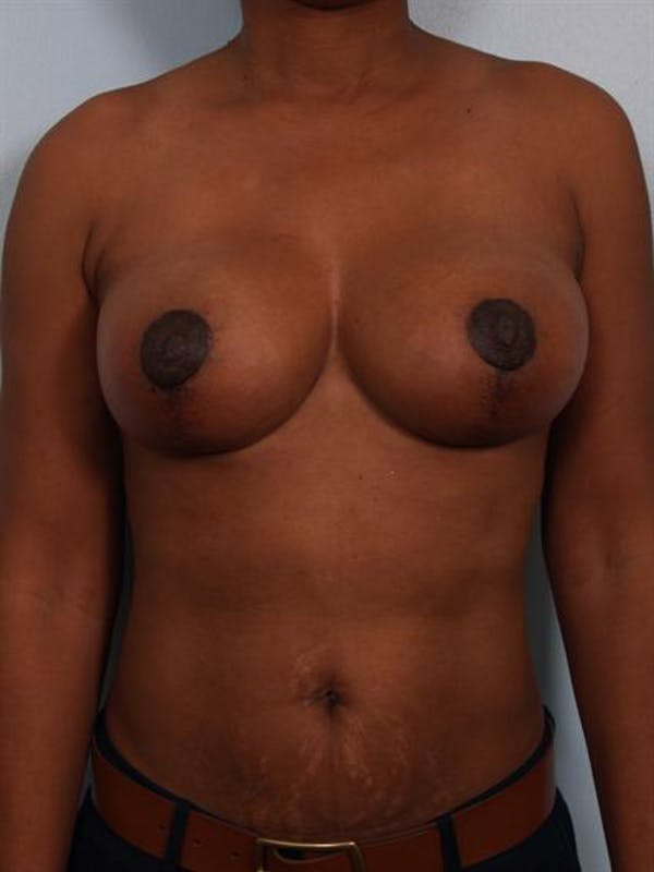 Breast Lift Gallery - Patient 1310464 - Image 2