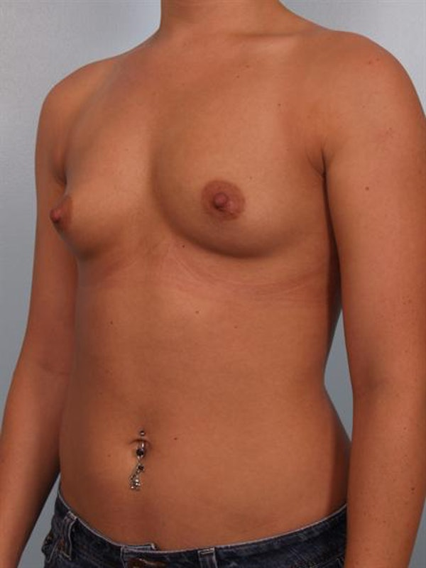 Breast Augmentation Gallery - Patient 1310465 - Image 3