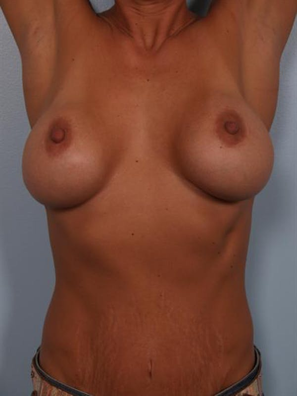 Complex Breast Revision Gallery - Patient 1310463 - Image 7