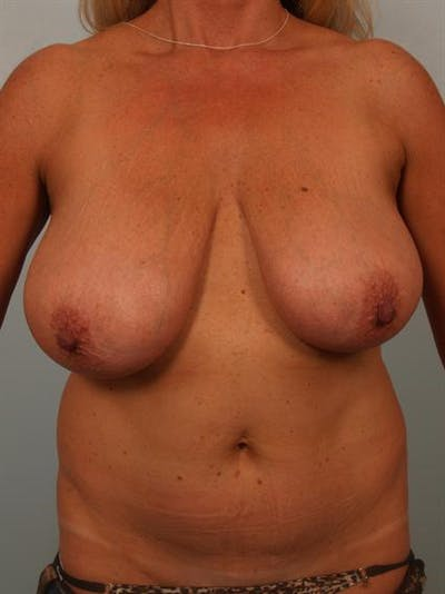 Breast Reduction Gallery - Patient 1310466 - Image 1