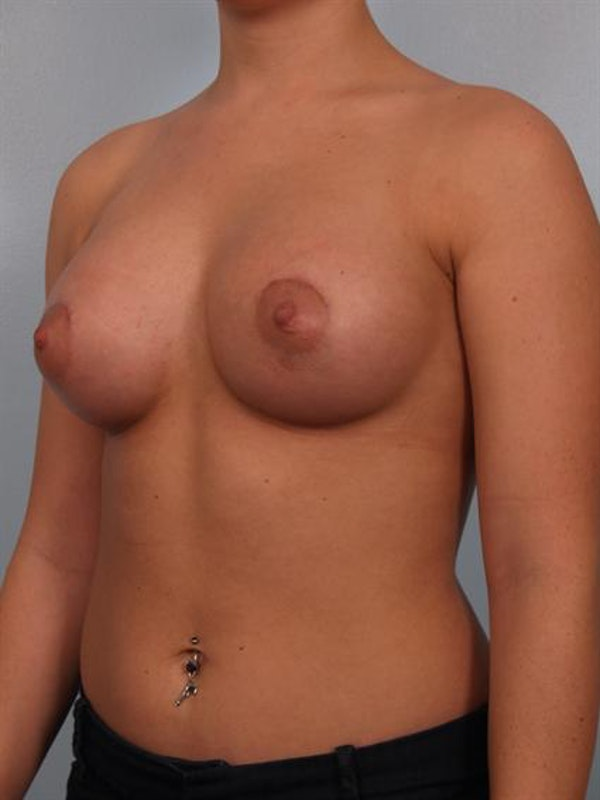 Breast Augmentation Gallery - Patient 1310465 - Image 4
