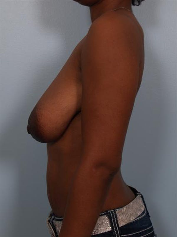 Breast Lift Gallery - Patient 1310464 - Image 3