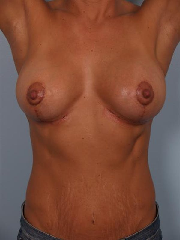 Complex Breast Revision Gallery - Patient 1310463 - Image 8