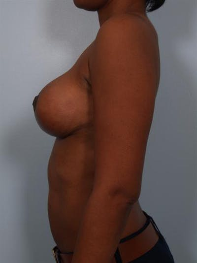 Breast Lift Gallery - Patient 1310464 - Image 4