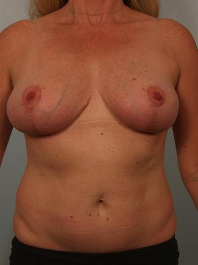 Breast Reduction Gallery - Patient 1310466 - Image 2