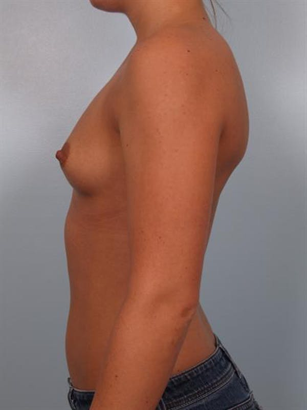 Breast Augmentation Gallery - Patient 1310465 - Image 5
